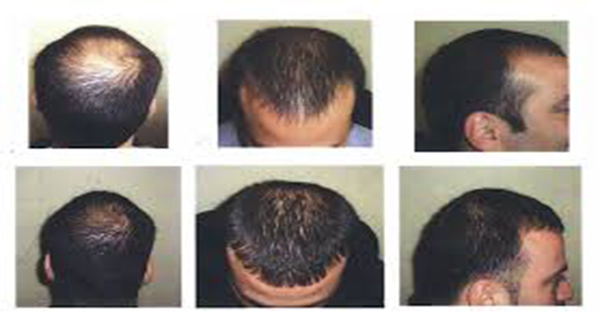 Are You Loosing Hair and Getting Bald Dont Panic, Because We Have a Solution!