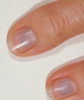 Bluish-Nails-e1435800628840