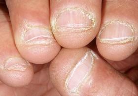 Chewed-Nails-e1435808312163