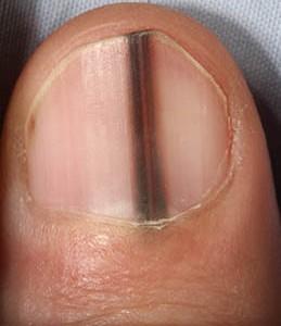 Dark-Stripe-Nails-e1435798070827