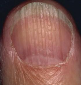 Nail-Beading-e1435799779363