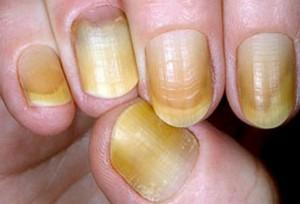 Yellow-Nails-e1435776274660