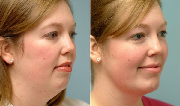 Incredible exercises in order to tighten up your loose skin and lose double chin