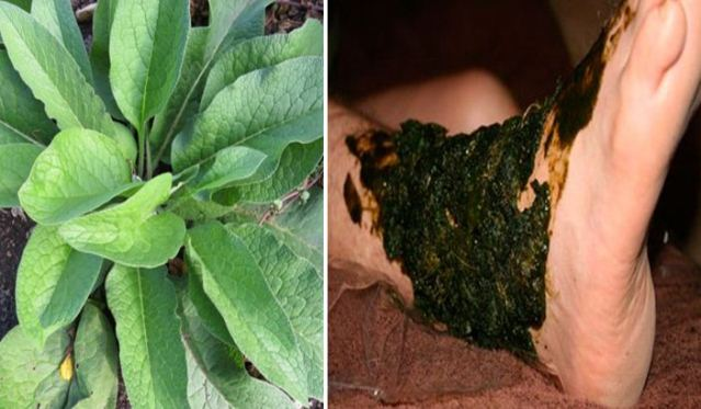 Heal Broken Bones and Bruises Faster With This Natural Remedy