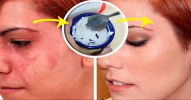 ONE INGREDIENT TO REMOVE THEM ALL HERE'S HOW TO SOLVE ALL YOUR SKIN PROBLEMS OVERNIGHT!