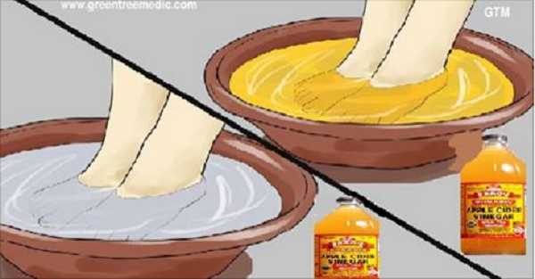 How To Soak Your Feet 66