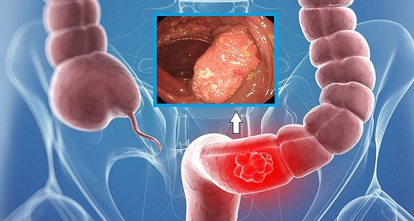 THIS OIL DESTROYS 93% OF COLON CANCER CELLS IN 2 DAYS