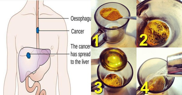 Why Turmeric, Black Pepper, And Olive Oil Make For A Powerful Cancer-Fighting Drink