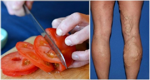 how-to-reduce-the-appearance-of-spider-veins-with-tomatoes