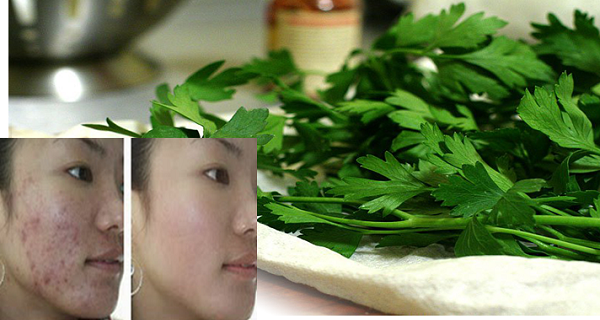use-the-leaves-of-this-plant-to-help-you-against-wrinkles-acne-dark-spots-and-sun-allergies