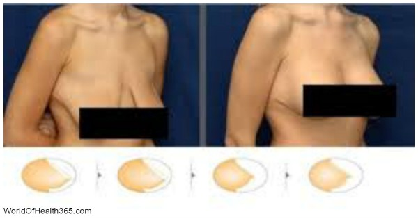 mask-against-sagging-breasts-amazing-results-after-5-days