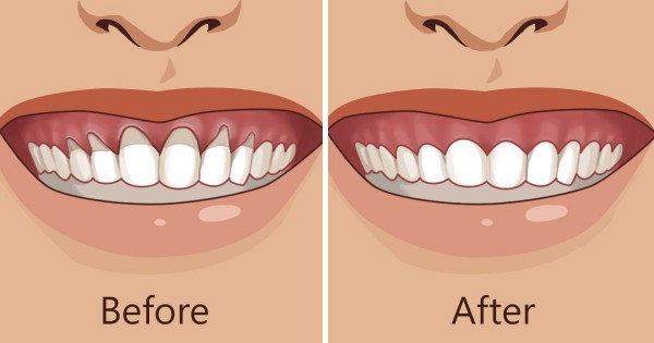 Natural Ways To Stop Gum Recession