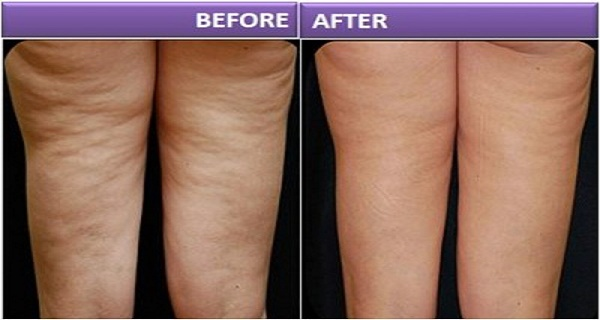 Apple Cider Vinegar Will Help You To Get Rid Of Cellulite